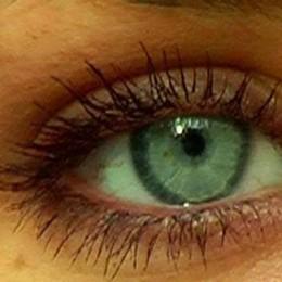 Un raggio laser  per curare la miopia