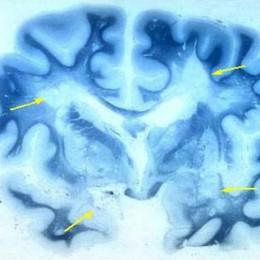 Scoperta la causa genetica della sclerosi multipla