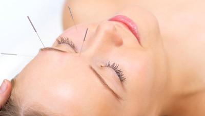 Perchè provare l'agopuntura«Ausilio efficace»