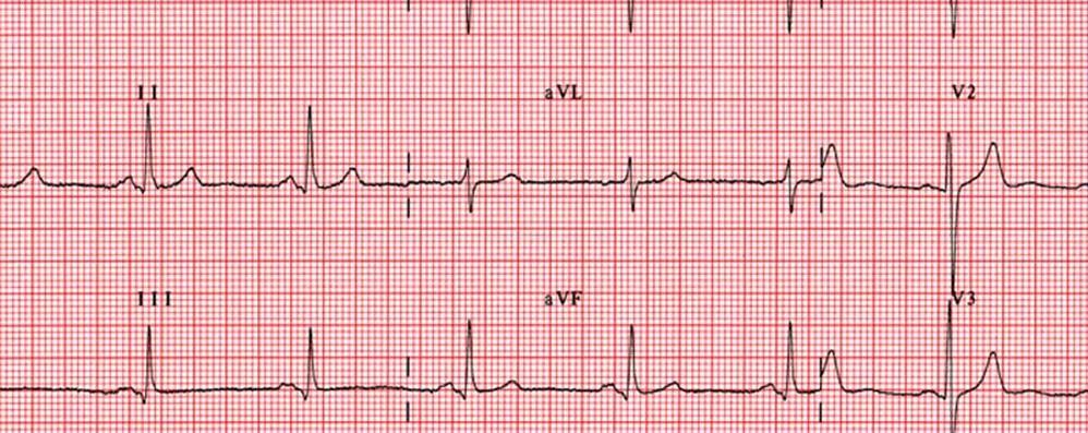 Il 29 Giornata Mondiale del cuore Ecocardiogramma gratis a Oriocenter