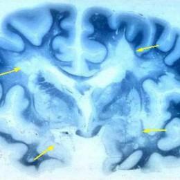Sclerosi multipla  nuove scoperte