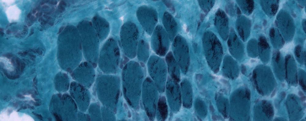 La mutazione di un gene all'origine della miopatia