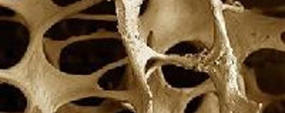 Osteoporosi, giornata di prevenzione  Visite gratuite in Gavazzeni