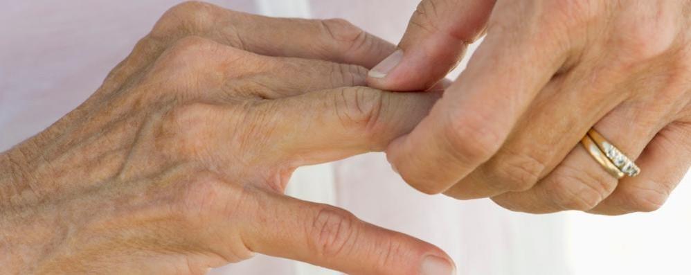 Artrite psoriasica attiva Ora c'è un nuovo farmaco