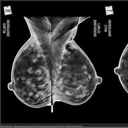 Tumore alla mammella triplo negativo Dall'Italia nuova via per il trattamento