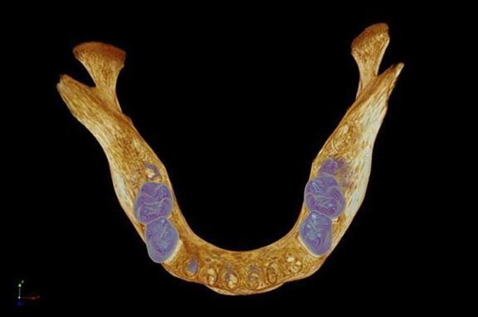 Mandibola umana medioevale, di Kevin MacKenzie, University of Aberdeen, una delle 18 immagini scientifiche premiate dall'organizzazione britannica Wellcome Trust con i Wellcome Image Awards