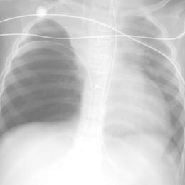 Nuove prospettive per curare l'asma  Dalla pesca importanti indicazioni