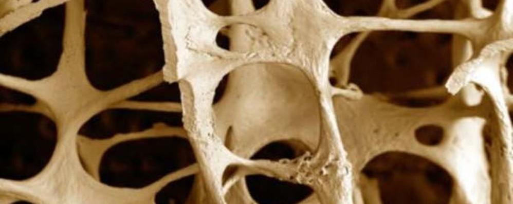 Osteoporosi, tantissimi i casi in Italia Una App permette di misura la Vitamina D