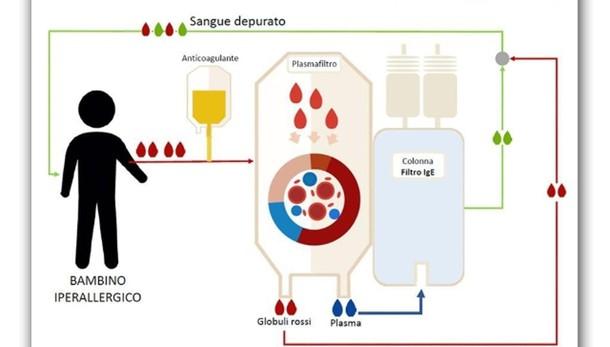 Curato da allergia grave lavando sangue