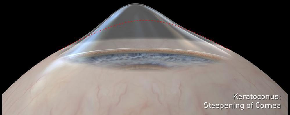 Anche una topografia corneale per una corretta diagnosi di cheratocono
