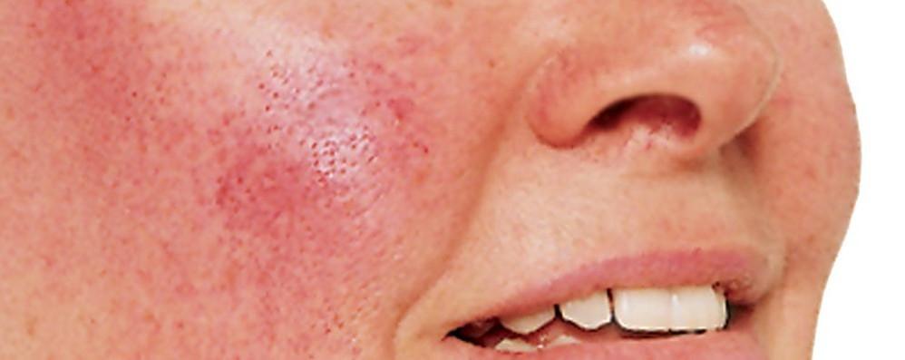 Rosacea, una malattia infiammatoria che colpisce circa l'8% della popolazione