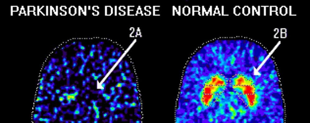 Stimolazioni neurali  «wireless» Nuove cure per la malattia di Parkinson
