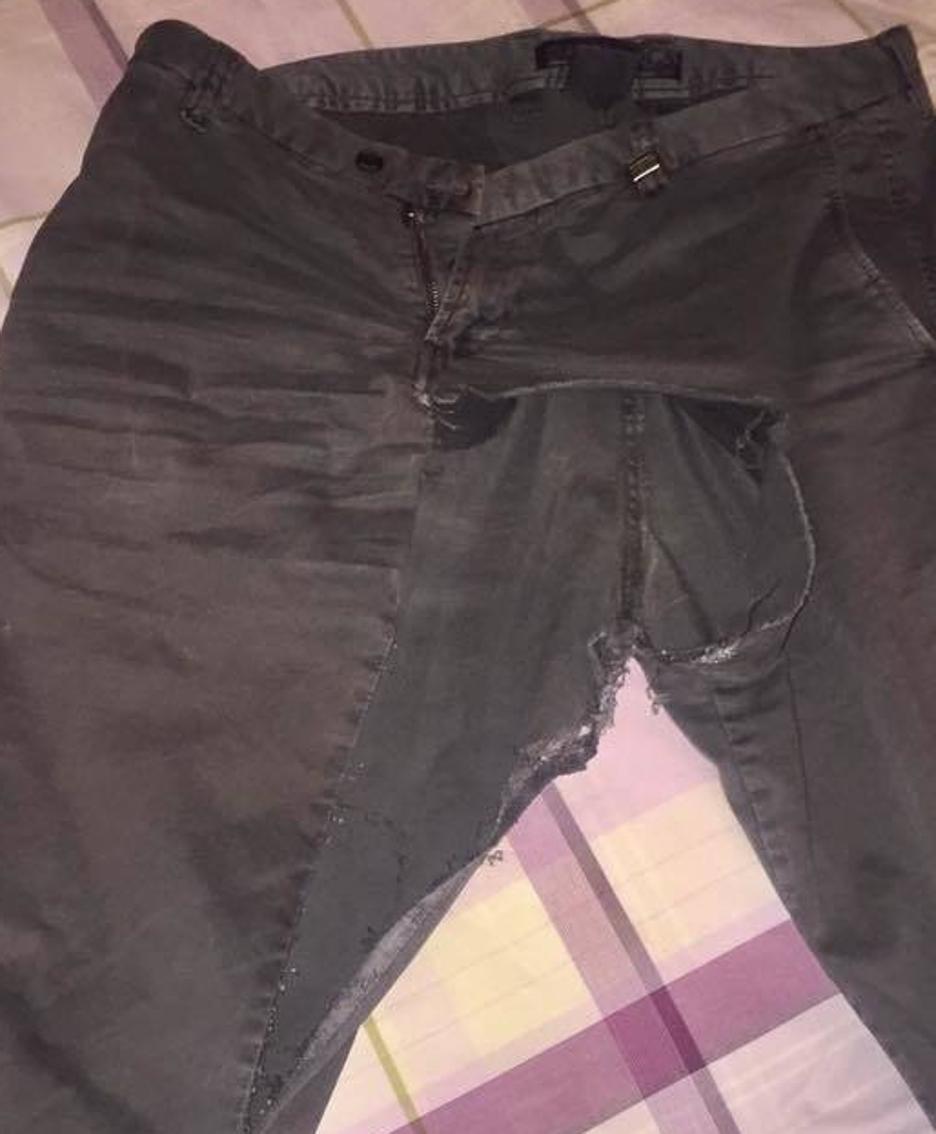 I pantaloni strappati dall'aggressore