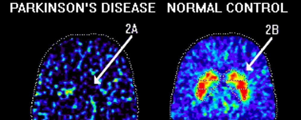 La diagnosi della malattia di Parkison Si punta ad analizzare la saliva
