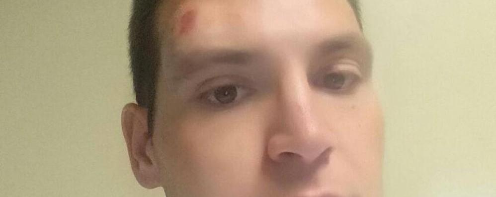 Aggredito alla sagra degli uccelli - video Casazza, giovane finisce in ospedale