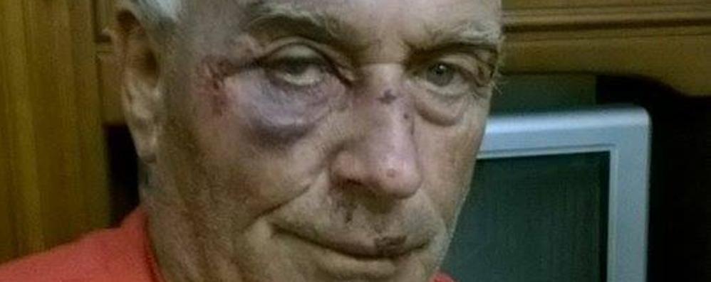 Rapina a Seriate, calci e pugni Pensionato finisce in ospedale