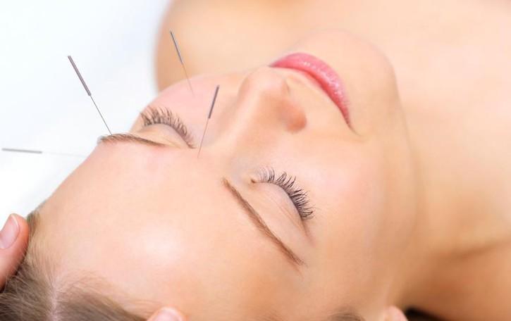 Perchè provare l'agopuntura «Ausilio efficace contro i dolori»