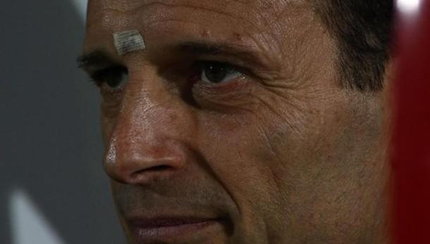 Allegri, l'Inter? Stop alle polemiche