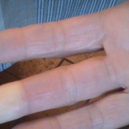Col freddo hai problemi alle dita? Forse è il fenomeno di Raynaud