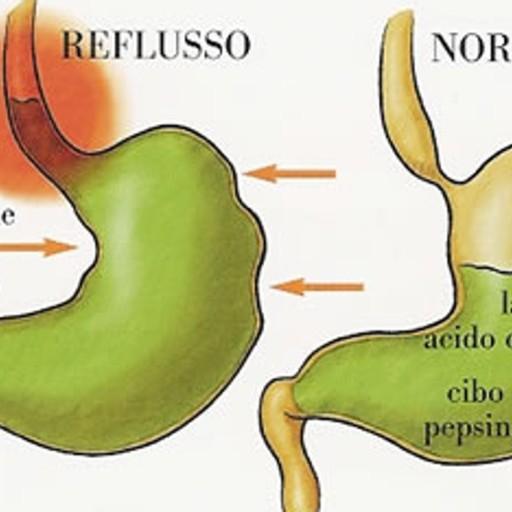 Dieta esofago barrett