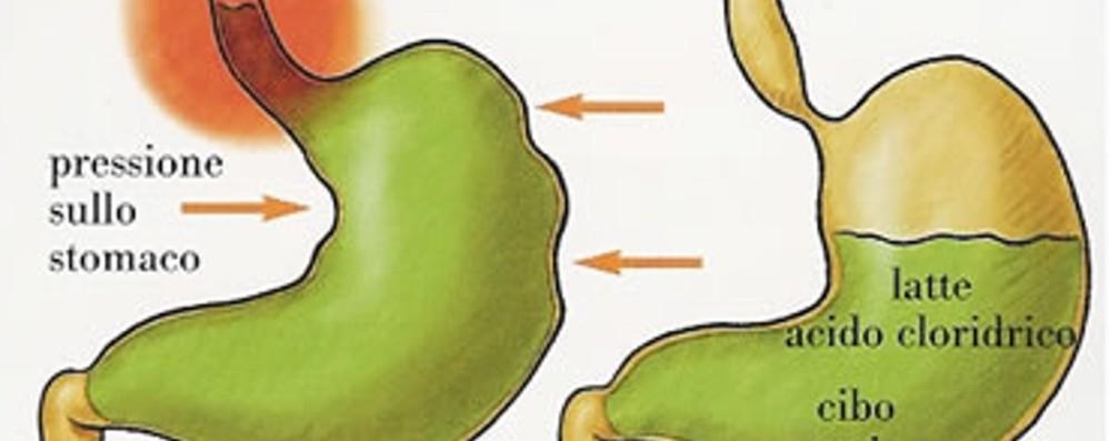 Malattia da reflusso, attenzione  Stile di vita e dieta possono aiutare