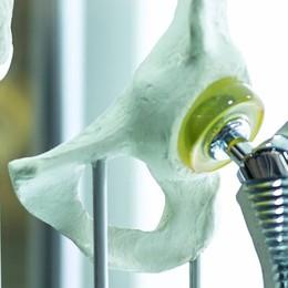 Protesi anca e ginocchio Recupero sempre più rapido