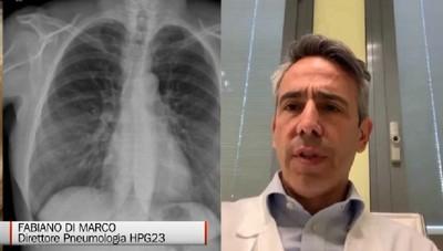 Di Marco: Le polmoniti interstiziali sono sparite