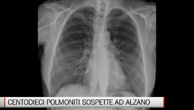 110 polmoniti sospetta da novembre a febbraio ad Alzano. Fontana. Impressionante