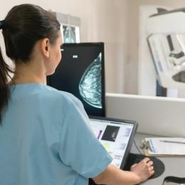 Tumore al seno Unità specializzate