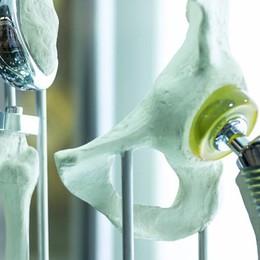 Sempre più protesi d'anca  Utile la via anteriore diretta