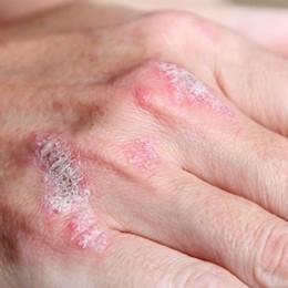 Malati di psoriasi e dermatologi, una piattaforma che li mette in contatto