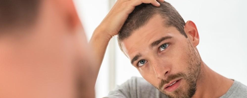 Venti milioni di italiani hanno problemi di alopecia